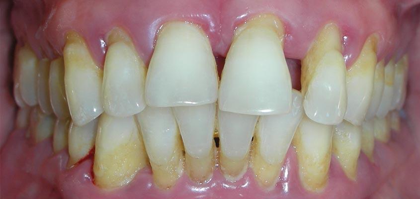 Parodontopatija - klinicka slika