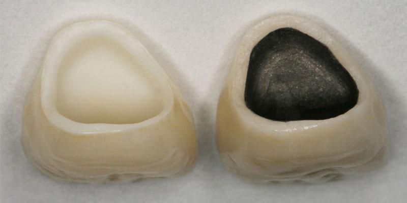 Bezmetalna cirkonijum i metalokeramicka kruna