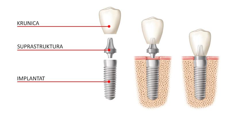 dijelovi implantata