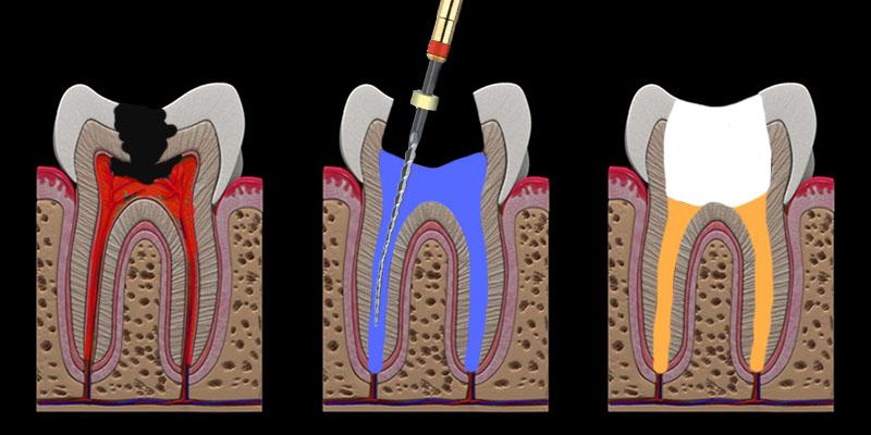 Liječenje zuba faze