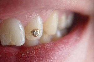 Kozmetska stomatologija